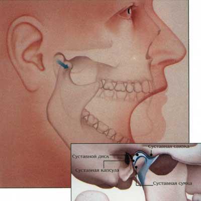 височно-нижнечелюстного сустава заболевания