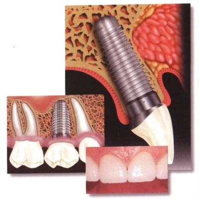 Астра: удаление зубов