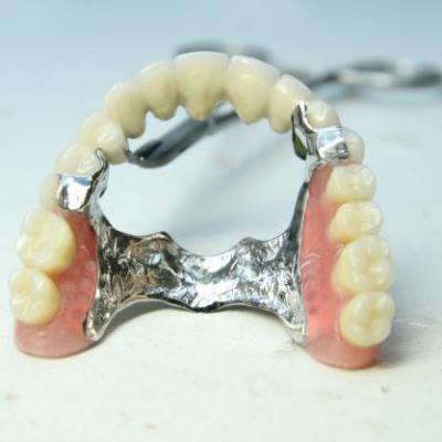 Протезирование зубов ортопедия металлокерамика и другое